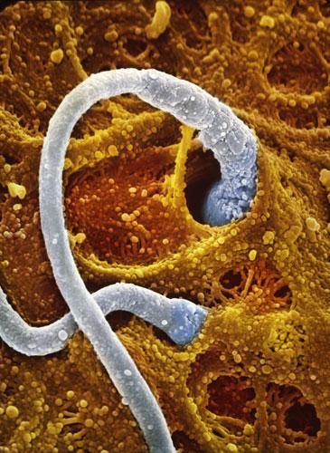 Два сперматозоида пробуриваются в убежище яйцеклетки