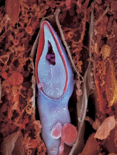 Продольное сечение сперматозоида. Генетический материал распологается в голове